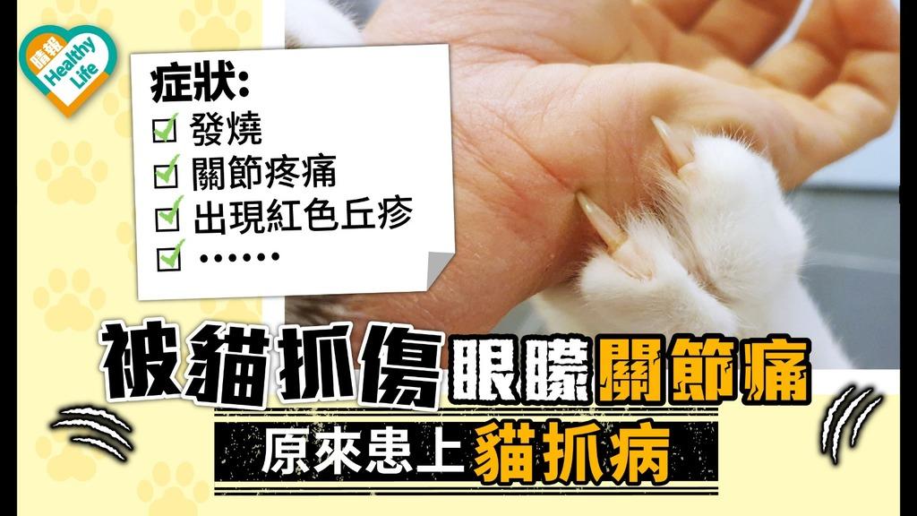 【貓抓病】獸醫被貓抓傷眼矇關節痛 9年來處於極度疲倦仍未痊癒