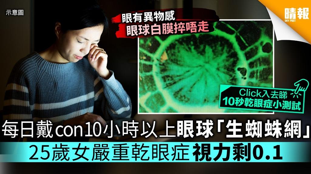 每日帶con10小時以上眼球「生蜘蛛網」 25歲女嚴重乾眼症視力剩0.1【附乾眼症10秒小測試】
