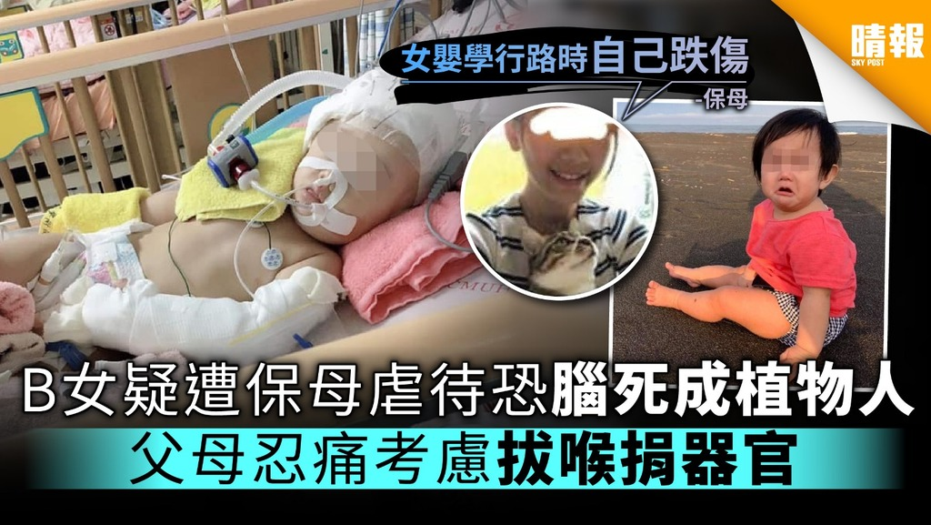B女疑遭保母虐待恐腦死成植物人 父母忍痛考慮拔喉捐器官