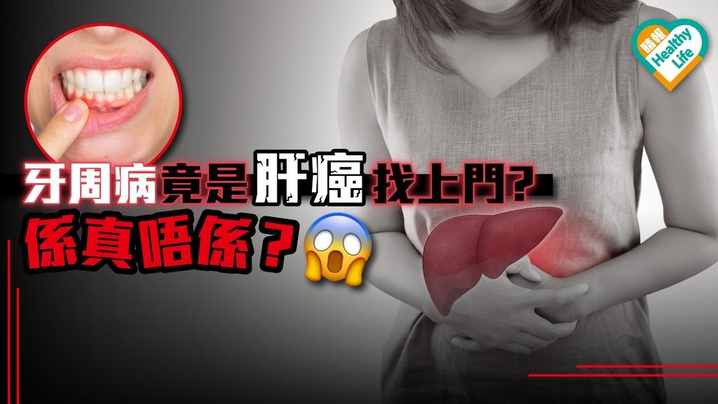 牙周病竟是肝癌找上門? 口腔問題持久不癒 可檢查肝臟
