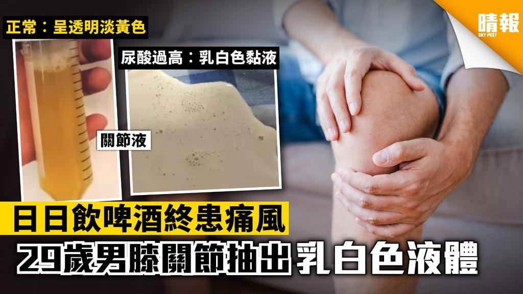 29歲男日日飲啤酒患痛風 膝關節抽出乳白色液體 【附預防痛風貼士】