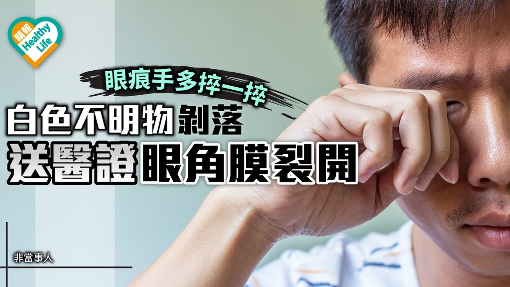 眼痕別捽眼 小心眼角膜裂開失視力