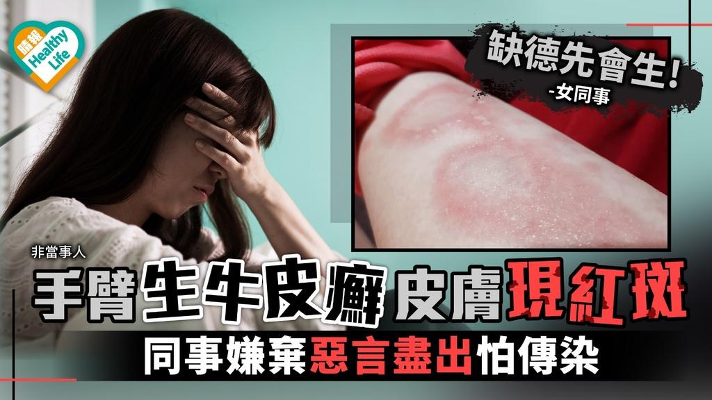 生牛皮癬被同事嫌棄 醫生:不具傳染性勿誤解