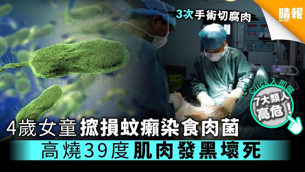 4歲女童搲損蚊癩染食肉菌 高燒39度肌肉發黑壞死