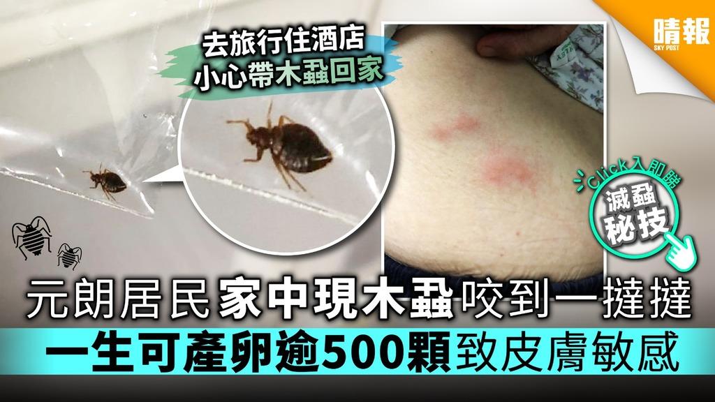 【附滅蝨秘技】元朗居民家中現木蝨咬到一撻撻 一生可產卵逾500顆致皮膚敏感