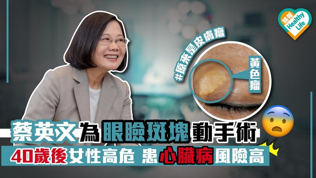 眼瞼黃斑瘤中年女性患者多 宜定期檢驗膽固醇水平