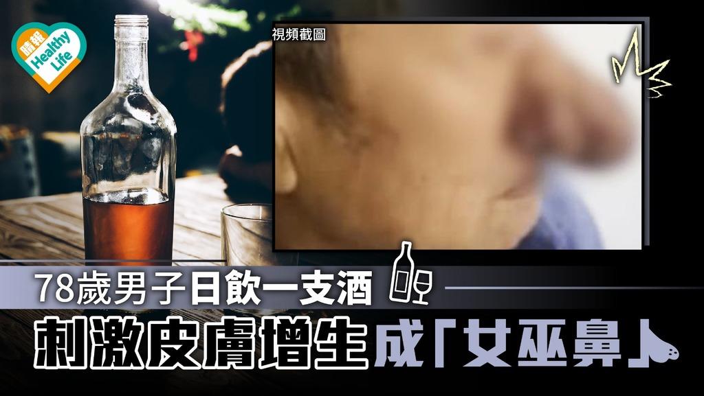 78歲男日飲一支酒 玫瑰痤瘡發展成「女巫」酒渣鼻