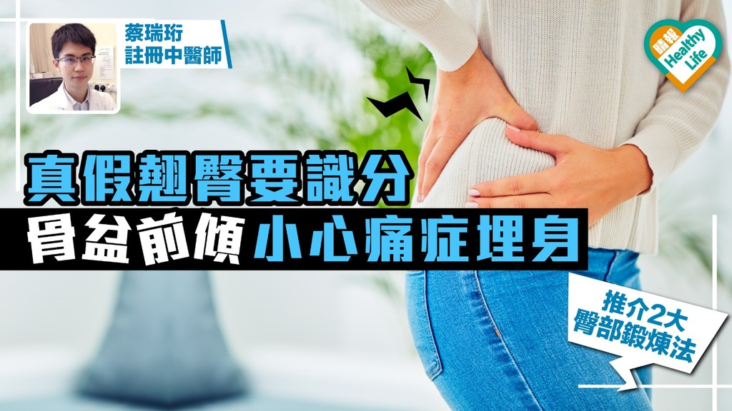 真假翹臀要識分 骨盆前傾小心痛症埋身