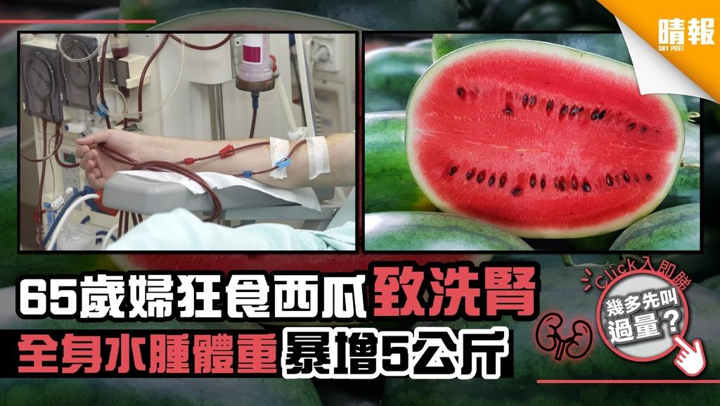 65歲婦狂食西瓜要洗腎 全身水腫體重暴增5公斤