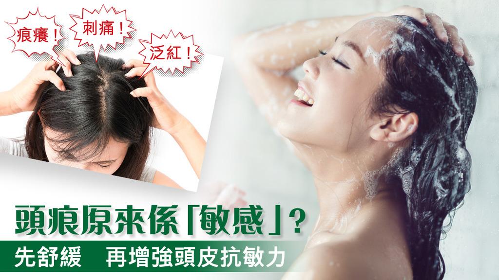 「頭痕原來係「敏感」? 先舒緩 再增強頭皮抗敏力」