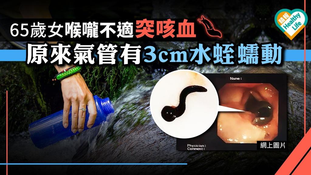 65歲女喉嚨不適突咳血 原來氣管有3cm水蛭在蠕動