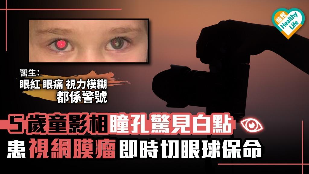 5歲童影相瞳孔驚見白點 患視網膜瘤即時切眼球保命