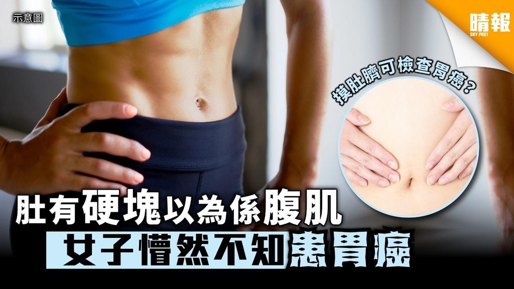 肚有硬塊以為係腹肌 女子懵然不知患胃癌 【附胃癌病徵】