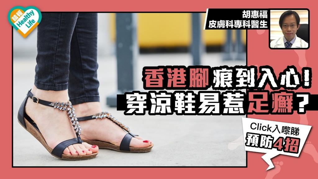 香港腳痕到入心!! 夏日穿涼鞋惹足癬 專家教你四招預防