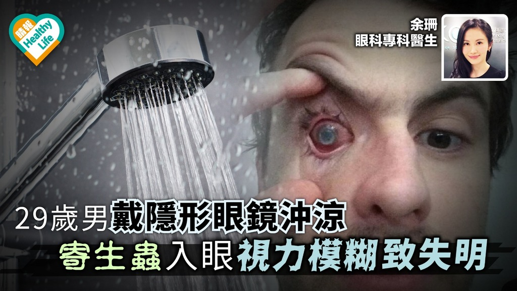 29歲男戴隱形眼鏡沖涼 寄生蟲入眼視力模糊致失明