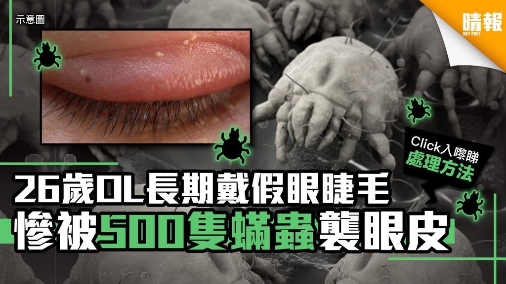 26歲OL長期戴假眼睫毛 慘被500隻蟎蟲襲眼皮