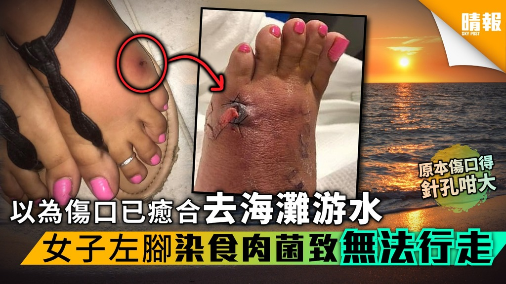 以為傷口已癒合去海灘游水 女子3日後左腳染食肉菌致無法行走