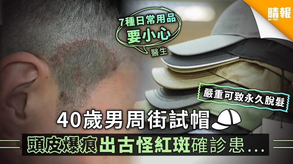 40歲男周街試帽 頭皮爆痕出古怪紅斑確診患...