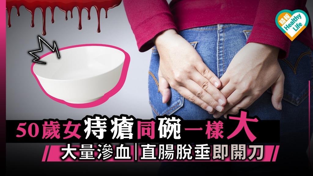 50歲女痔瘡大如碗腸脫垂 懷孕肥胖便秘增患痔風險