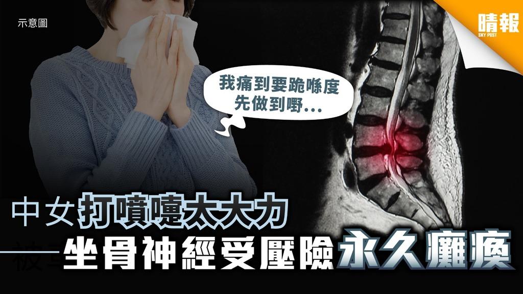 中女打乞嗤太大力 坐骨神經受壓險永久癱瘓
