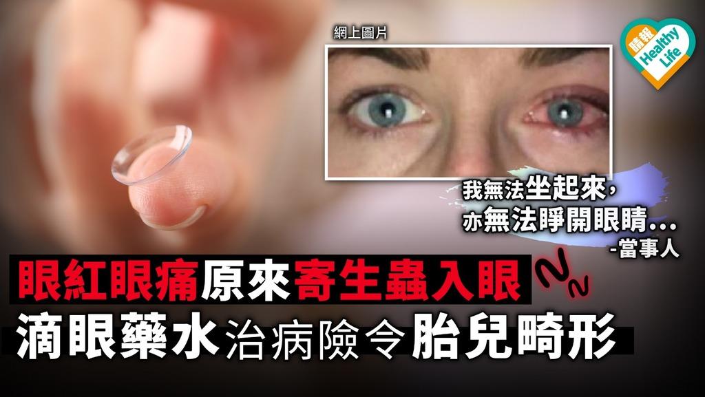 【隱形眼鏡】眼紅眼痛原來寄生蟲入眼 滴眼藥水治病險令胎兒畸形