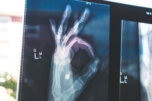 【骨質疏鬆】骨折增27%死亡風險 醫生教你預防骨質疏鬆飲食方法
