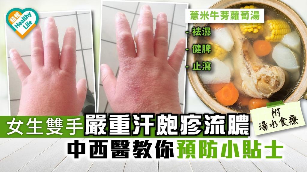 女生雙手嚴重汗皰疹流膿 中西醫教你預防小貼士【附湯水食療】