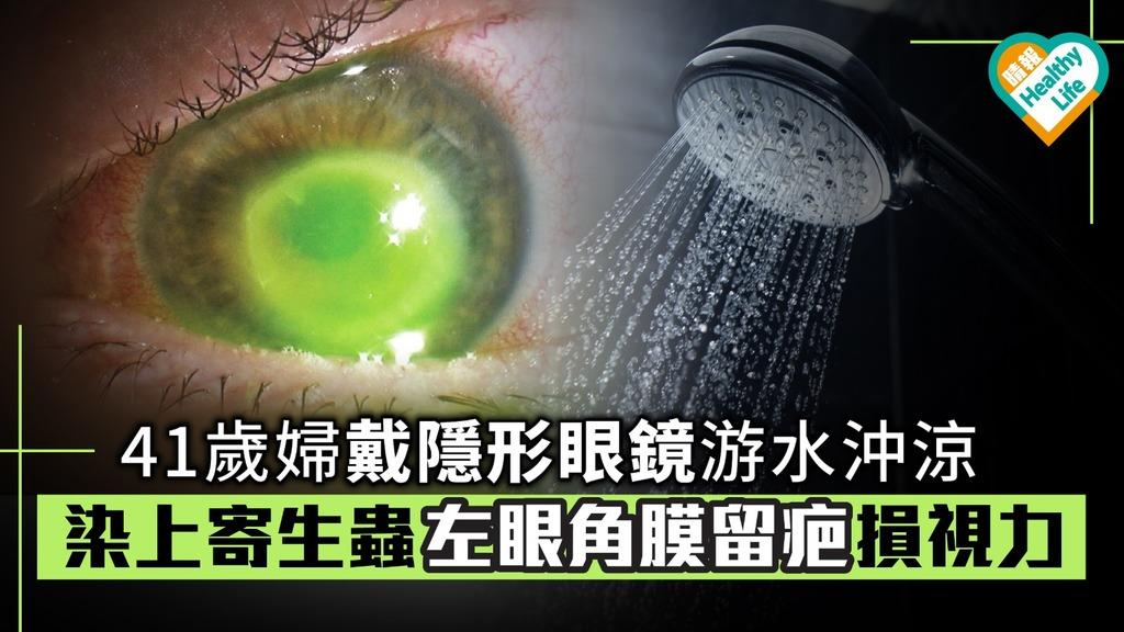 41歲婦戴隱形眼鏡游水沖涼 染上寄生蟲左眼角膜留疤損視力