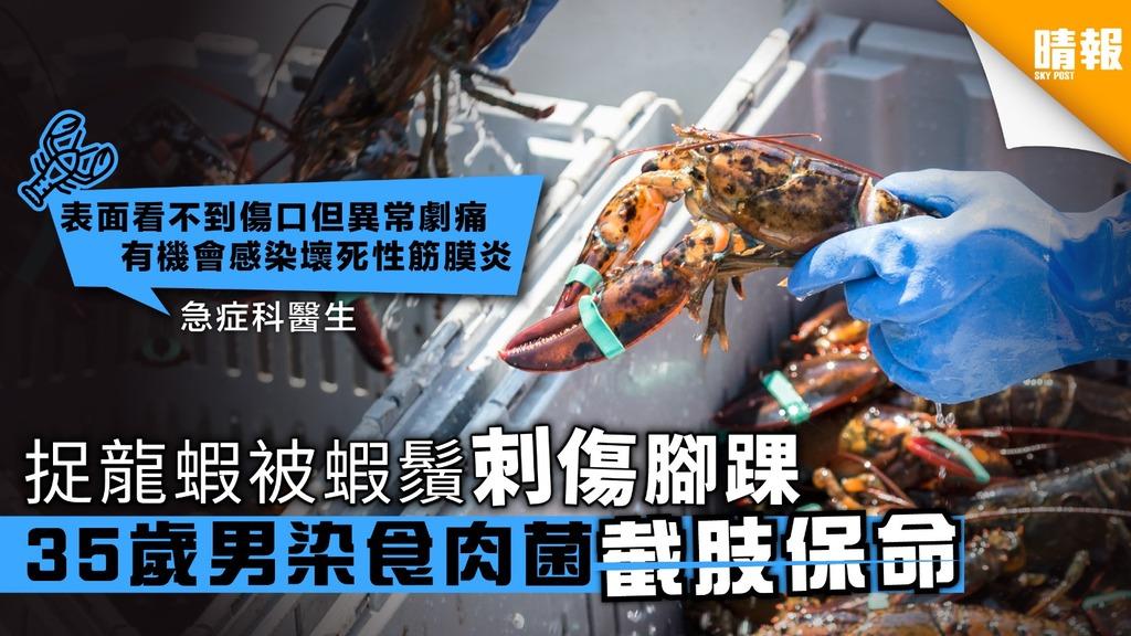 捉龍蝦被蝦鬚刺傷腳踝 35歲男染食肉菌截肢保命