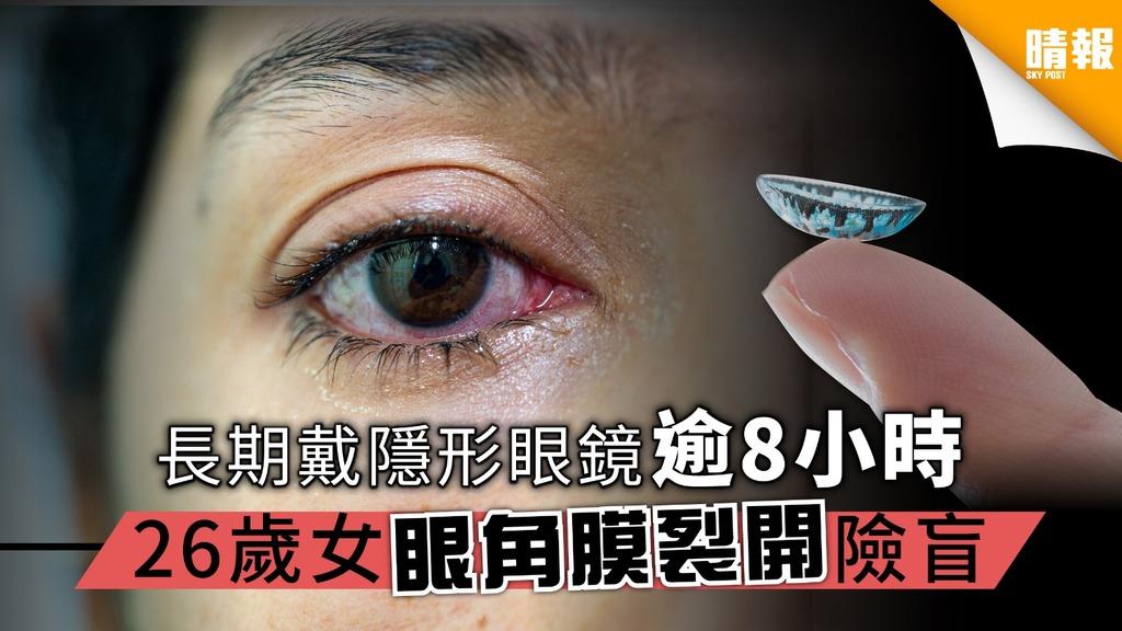 長期戴隱形眼鏡超過8小時 26歲女眼角膜裂開險盲