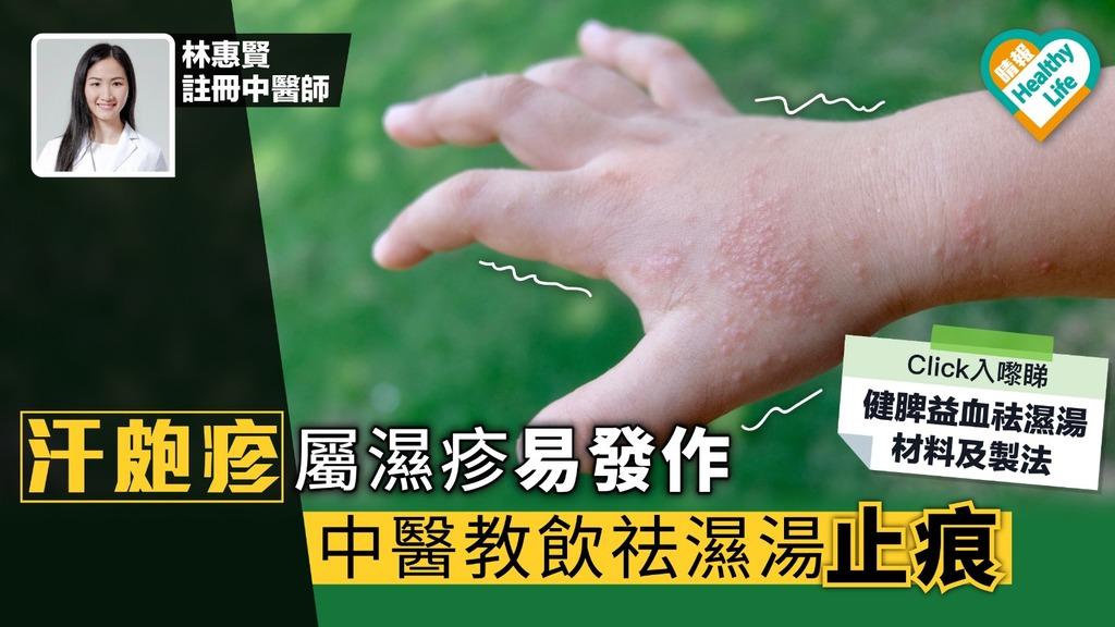 汗皰疹屬濕疹易發作 中醫教飲祛濕湯止痕