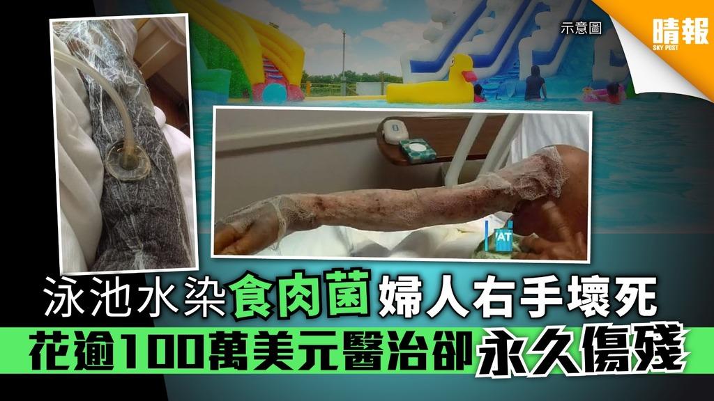 泳池水染食肉菌 婦人右手壞死 花逾100萬美元醫治卻永久傷殘