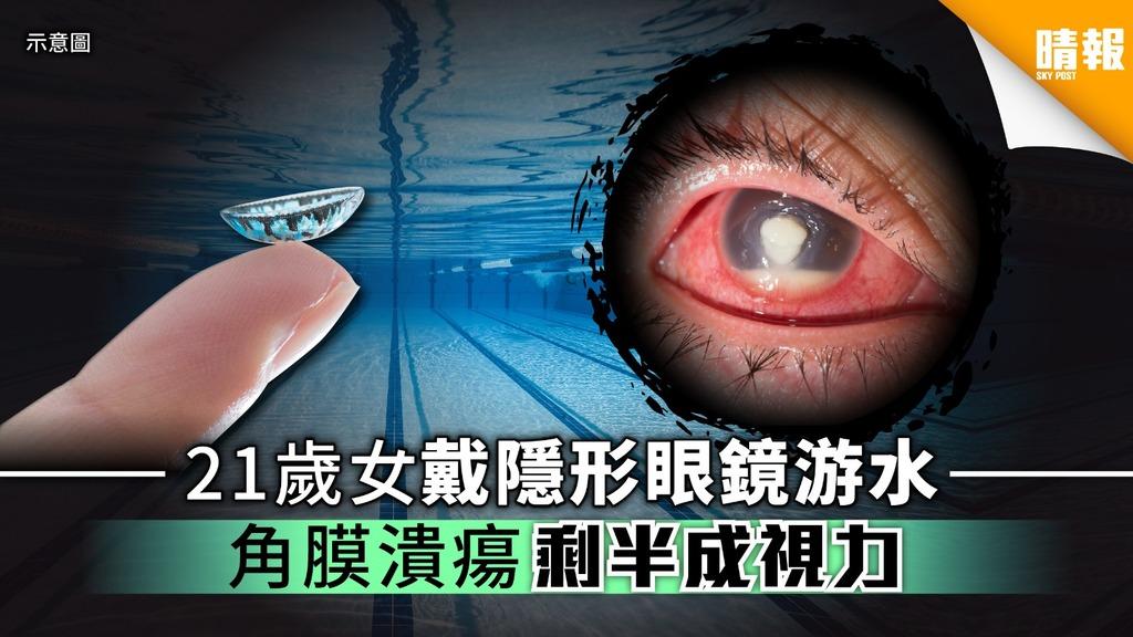 21歲女戴隱形眼鏡游水 角膜潰瘍剩半成視力