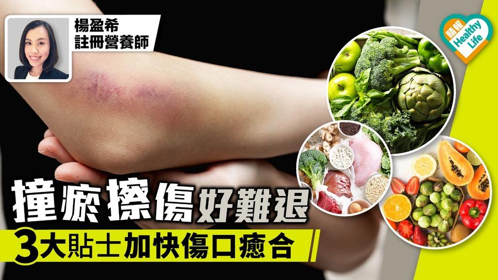 【傷口處理】撞瘀擦傷好難退 3大貼士加快傷口癒合