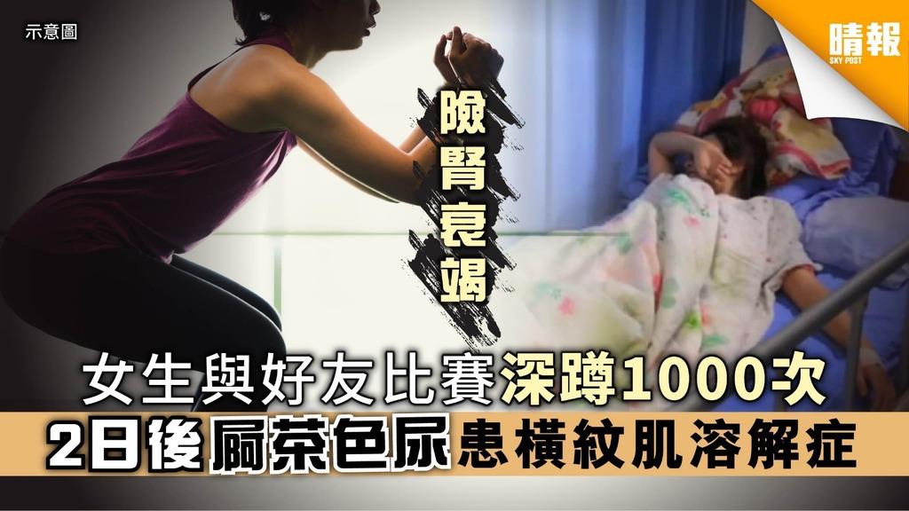 女生狂做深蹲1000次 2日後尿液茶色患橫紋肌溶解症【附醫生解說】