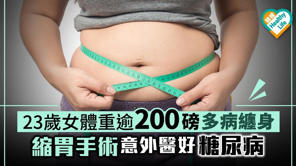 23歲女體重逾200磅多病纏身 縮胃手術意外醫好糖尿病