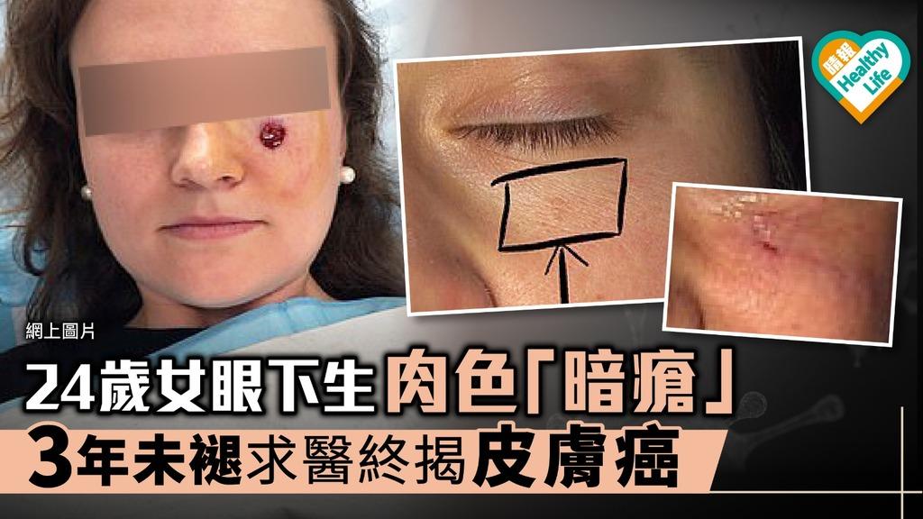 24女眼下生肉色「暗瘡」 3年未褪求醫終揭皮膚癌