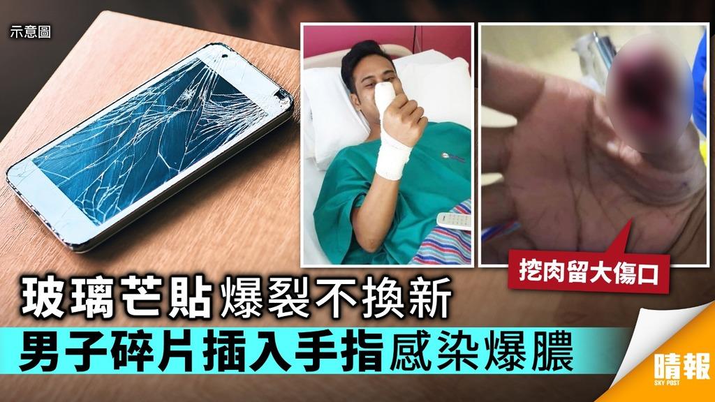 手機玻璃芒貼爆裂不換新 男子碎片插入手指感染爆膿