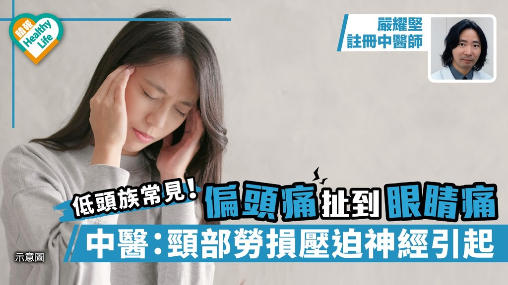 偏頭痛扯到眼睛痛 中醫:頸部勞損壓迫神經引起