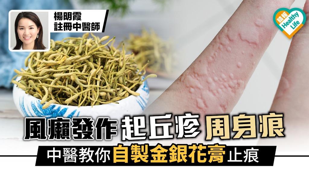 風癩突然發作起丘疹周身痕 中醫教你自製金銀花止痕膏