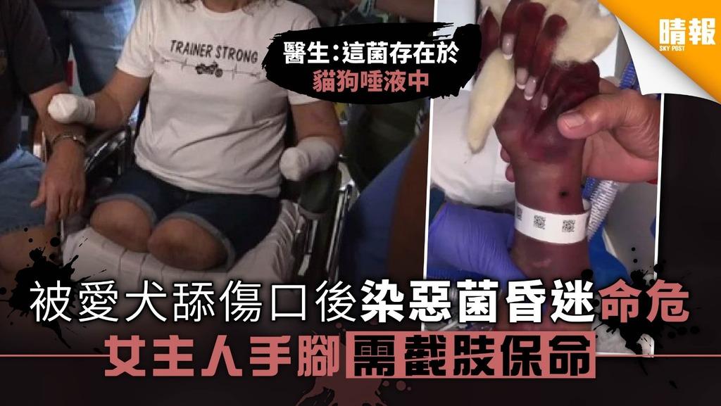 被愛犬舔傷口後染惡菌昏迷命危 女主人手腳需截肢保命