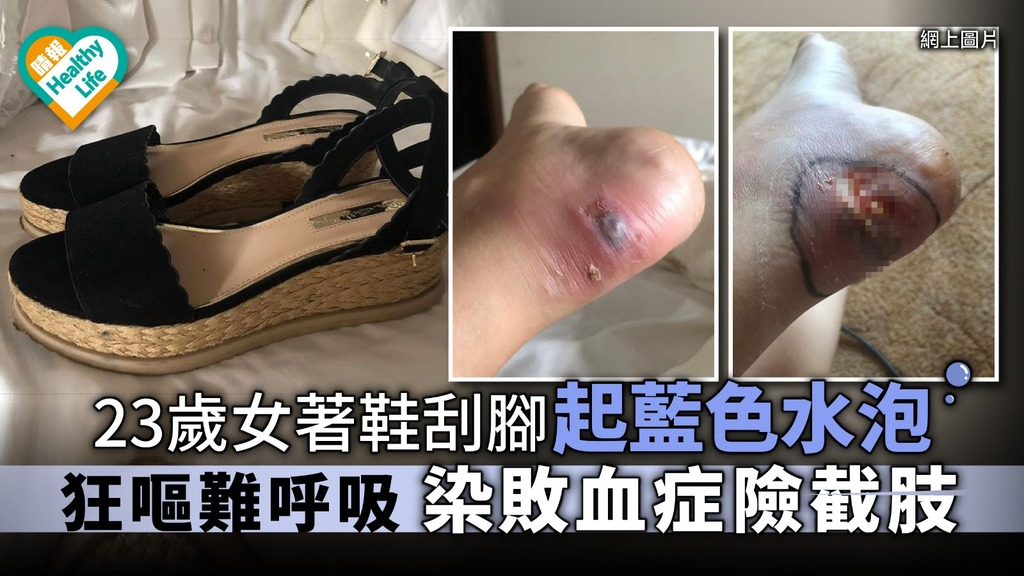 23歲女著鞋刮腳起藍色水泡 狂嘔難呼吸染敗血症險截肢