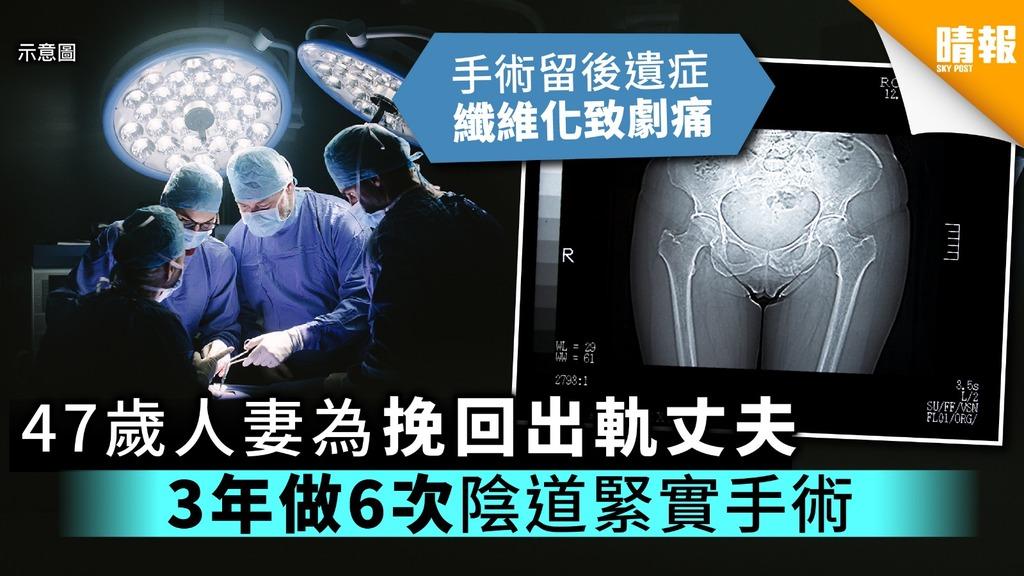 47歲人妻為挽回出軌丈夫 3年做6次陰道緊實手術留後遺症【附醫生專業意見】