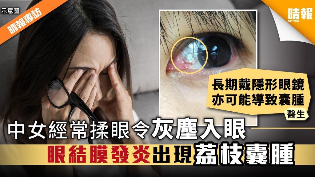 中女經常揉眼令灰塵入眼 眼結膜發炎出現荔枝囊腫