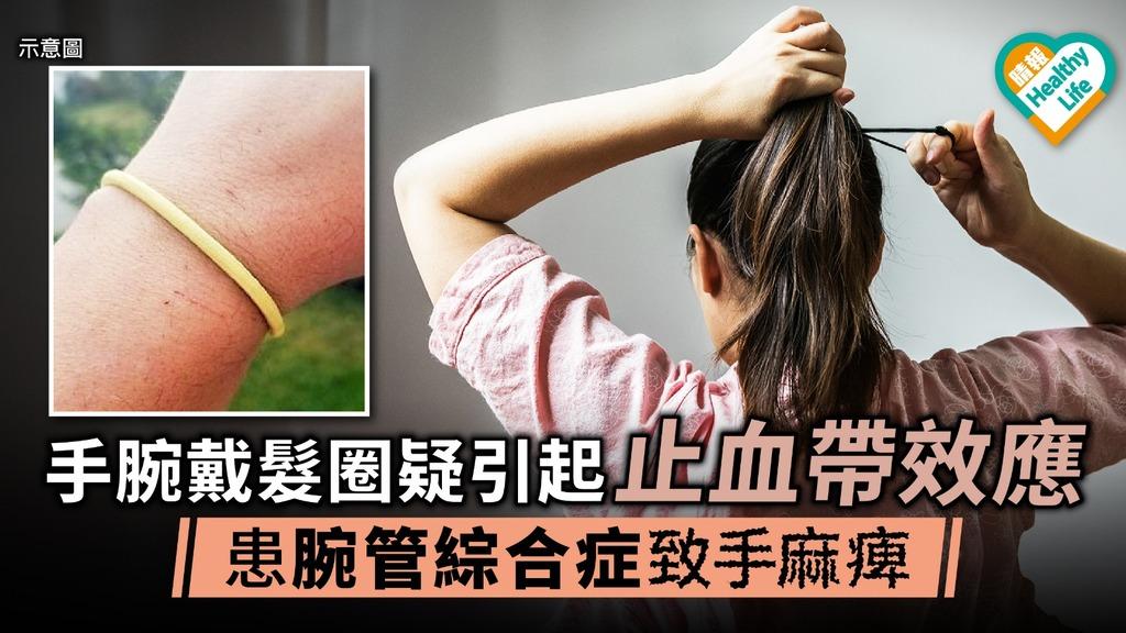 手腕戴髮圈疑引起止血帶效應 患腕管綜合症致手麻痺