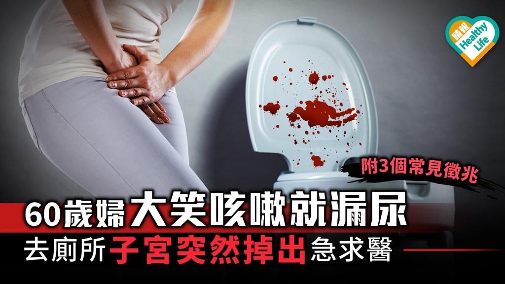 大笑咳嗽就漏尿小心子宮下垂 更年期婦女3個常見徵兆要留神