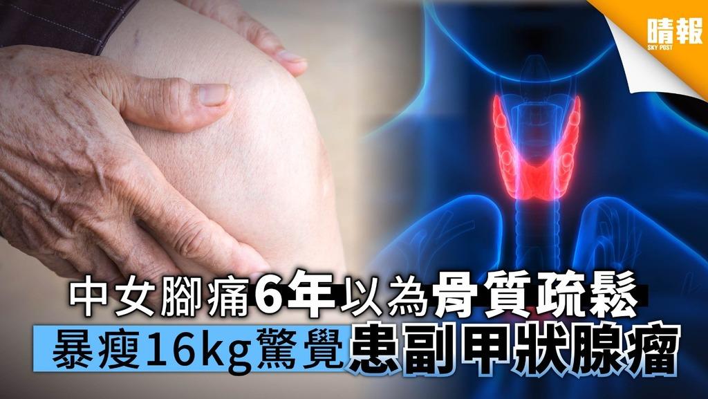 中女雙腳痠痛6年以為骨質疏鬆 暴瘦16公斤驚覺患副甲狀腺瘤