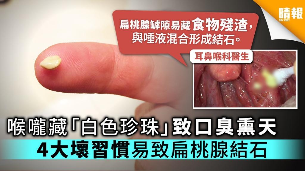 喉嚨藏「白色珍珠」致口臭熏天 4大壞習慣易致扁桃腺結石