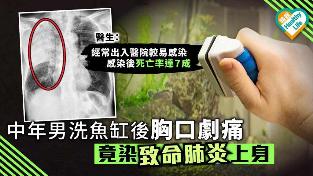 中年男洗魚缸後胸口劇痛 竟染致命肺炎上身 醫生:經常出入醫院較易受感染