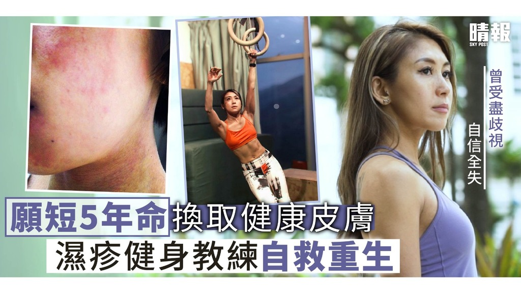 【晴報專訪】願短5年命換取健康皮膚 濕疹健身教練自救重生